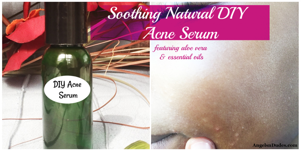 DIY Acne Serum